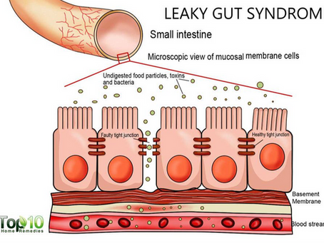 Increased Intestinal Permeability  - what it is and why you should care about it