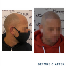 Before and after scalp micropigmentation SMP Birmingham hair .png