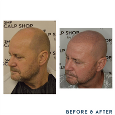 Before and after scalp micropigmentation SMP Birmingham hair thinning.png