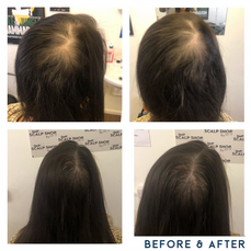 Before and after scalp micropigmentation SMP Birmingham hairline receed.png