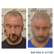 Before and after scalp micropigmentation SMP Birmingham receeding hairline.png