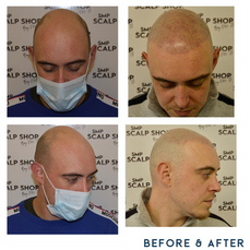 Before and after scalp micropigmentation SMP Birmingham 2.png