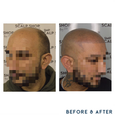 Before and after scalp micropigmentation SMP Birmingham receeding.png