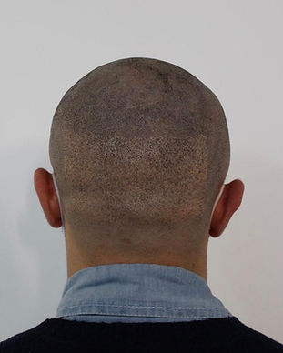 SMP scarring covering with scalp micropi