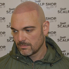Smpbirmingham scalp micropigmentation ha