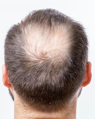 scalp%20micropigmentation%20hair%20bald%