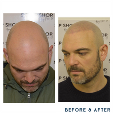 Before and after scalp micropigmentation SMP Birmingham alopecia.png