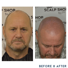 Before and after scalp micropigmentation SMP Birmingham hair thin.png