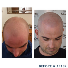 Before and after scalp micropigmentation SMP Birmingham scalp.png