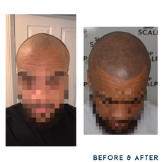 Before and after scalp micropigmentation SMP Birmingham hairline.png