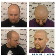 Before and after scalp micropigmentation SMP Birmingham hair loss scalp.png