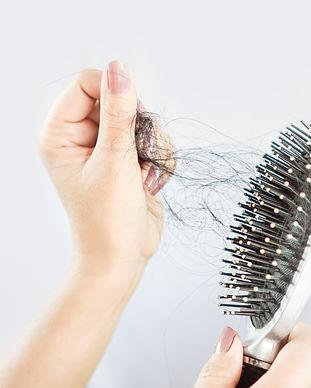 SMP birmingham for alopecia hair loss.jp