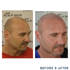 Before and after scalp micropigmentation SMP Birmingham thin hair.png