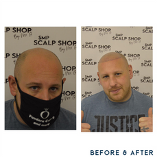 Before and after scalp micropigmentation SMP Birmingham 3.png
