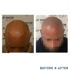 Before and after scalp micropigmentation SMP Birmingham hair loss.png