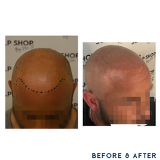 Before and after scalp micropigmentation SMP Birmingham west midlands.png