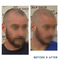 Before and after scalp micropigmentation SMP Birmingham hairline 1.png