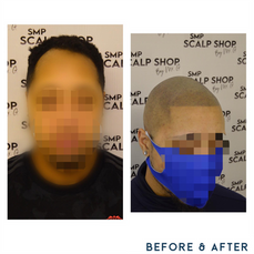 Before and after scalp micropigmentation SMP Birmingham hair loss receeding.png