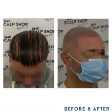 Before and after scalp micropigmentation SMP Birmingham bald.png