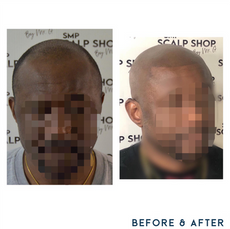 Before and after scalp micropigmentation Birmingham SMP.png
