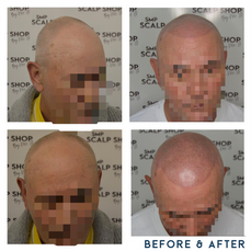 Before and after scalp micropigmentation SMP Birmingham.png