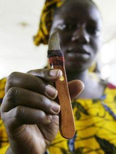 circumcision knife.jpg