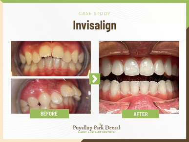 Puyallup Park Dental Family Emergency Implants Braces Invisalign 13909 Meridian East, Suite A-1 Puyallup, WA 98373 Our Services : Crowns, Wisdom Teeth Extraction, IV Sedation, Kor Teeth Whitening, Tooth Bonding, Porcelain Veneers, Bridges, Fillings, Children's Dentistry, Teeth Extraction, Exams,