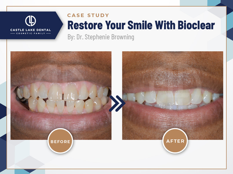 Restore Your Smile With Bioclear