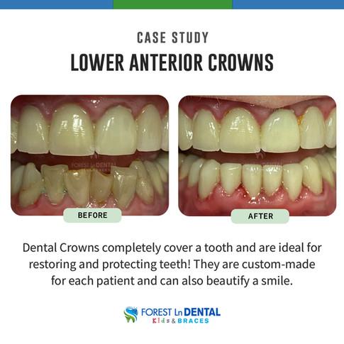 Lower Anterior Crowns