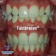 Blooming Dental_FastBraces Case study_we