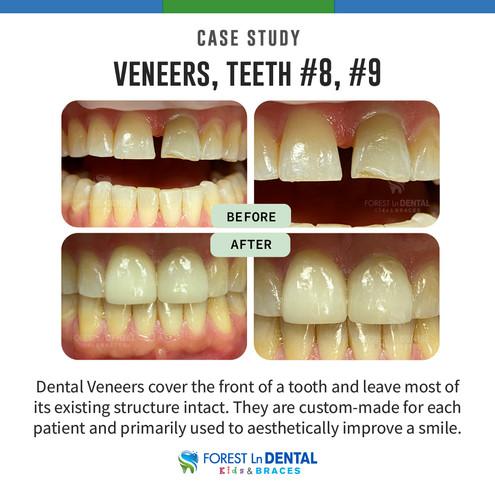 Veneers, Teeth #8, #9