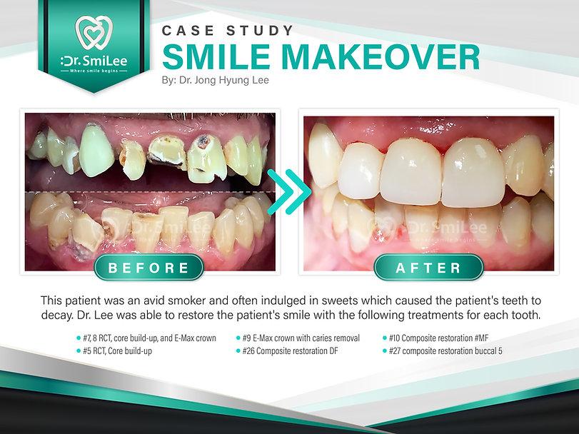 Dr Smilee Dental of Waco Family Emergency Implants_Case Study_July 2021 (1).jpg