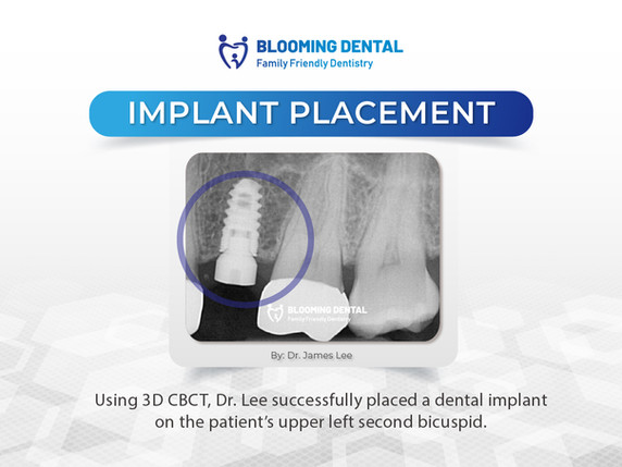 Blooming Dental_upper left second bicuspid implant placement _Oct 2021.jpg