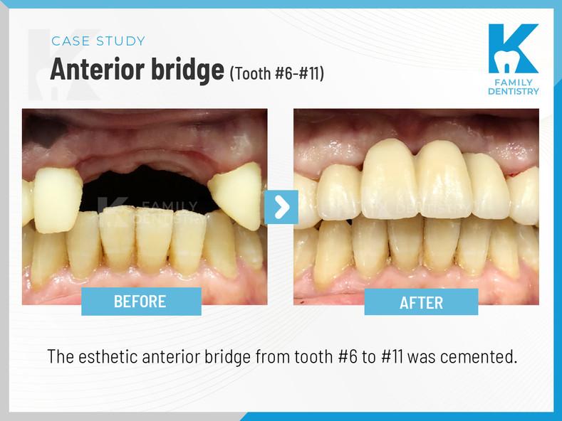 Anterior bridge #6-#11