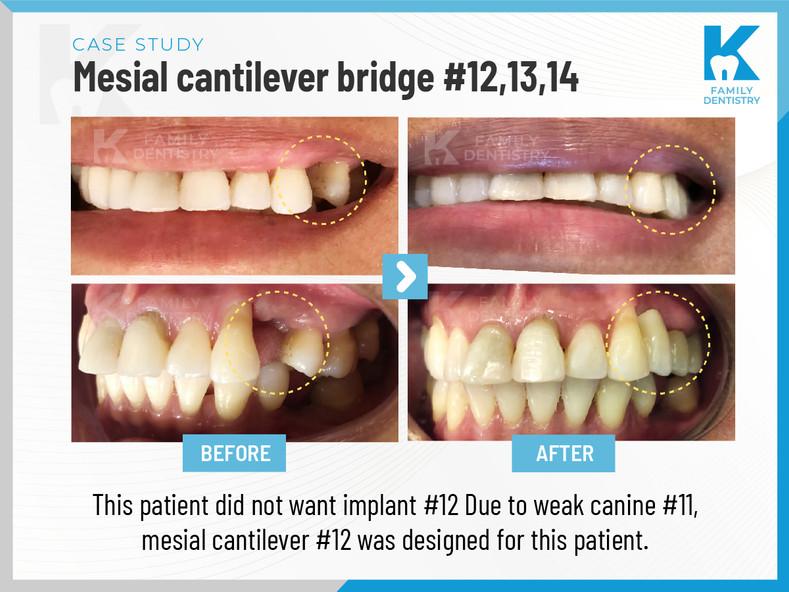 Mesial cantilever bridge #12,13,14