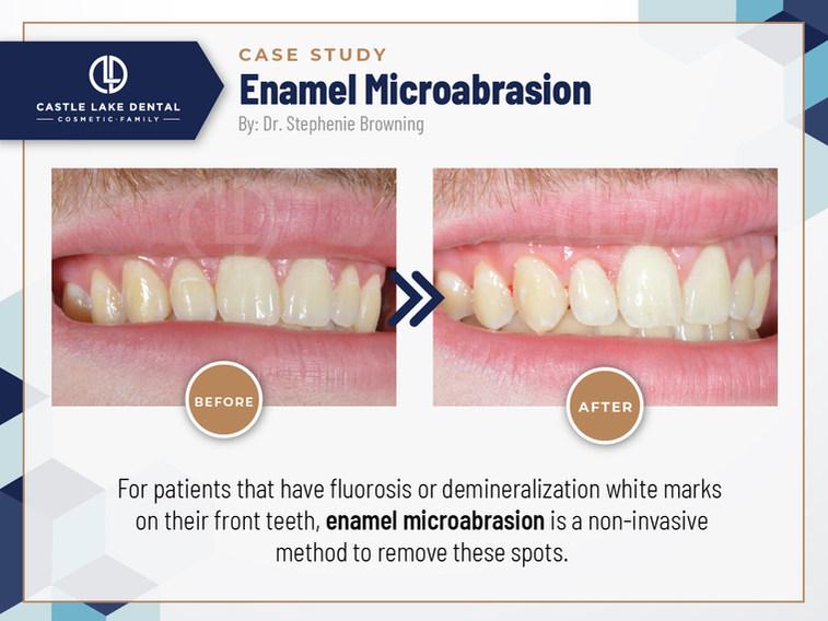 Enamel Microabrasion_Case study_Castle Lake Dental_Oct 2021.jpg