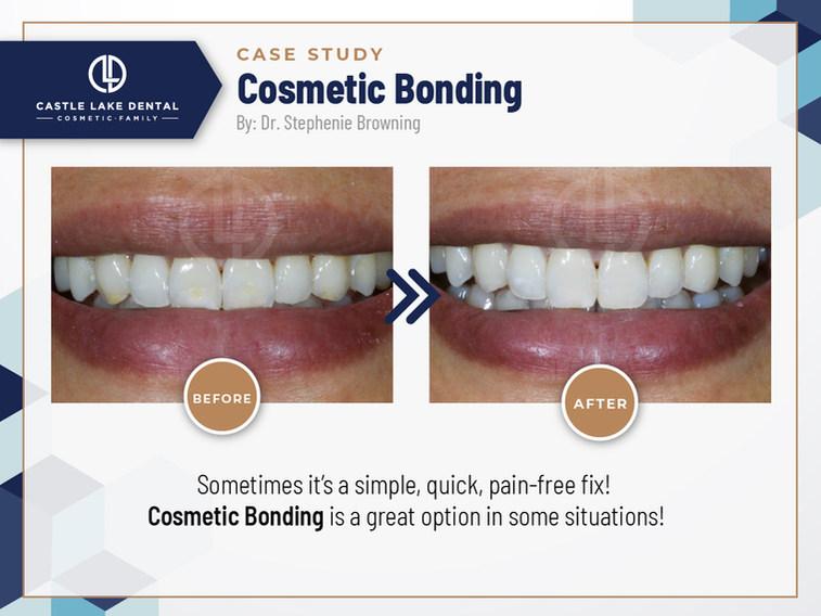 Cosmetic Bondingg