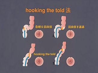 hooking.jpg