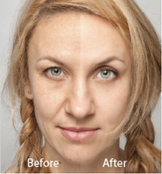 Hollywood Spectra Peel B&A.png