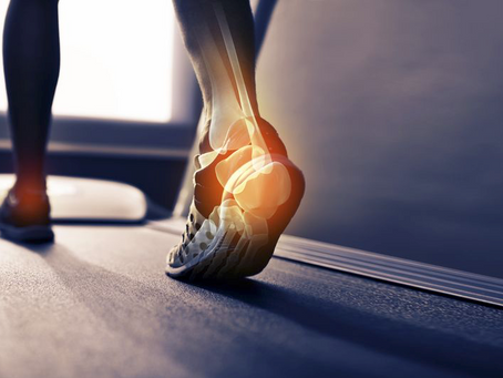 Achilles Pain? Your Hips Don't Lie.