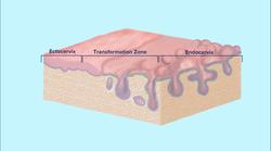 3D Drawing of Cervix
