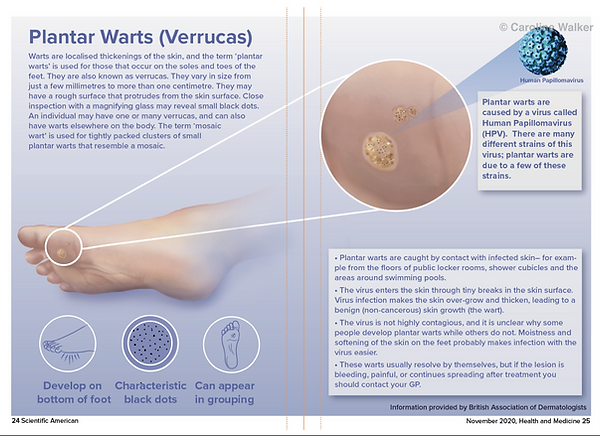 plantar wart layout to match for website