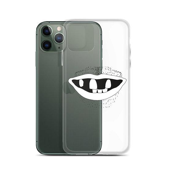 Six Teeth Apart - iPhone Case