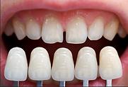veneers-and-laminates-treatment-500x500.