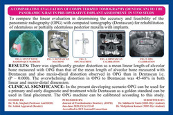 Article Published in Journal of prosthetic dentistry ( JOPD), Accredited in DCI Journal/Consorium 20