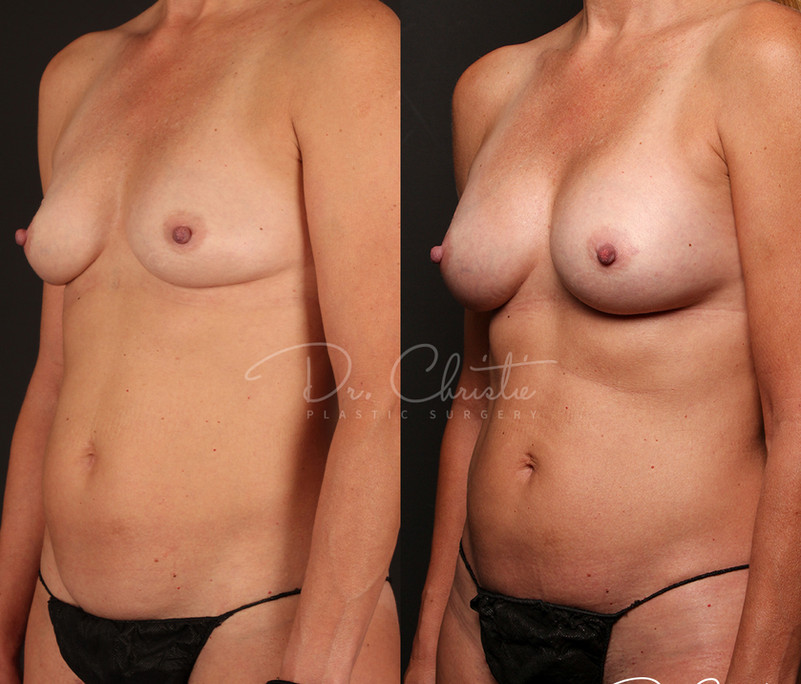 DB Breast-2.jpg