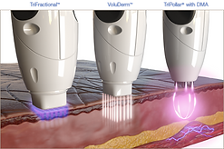 RF-Microneedling-technology.png
