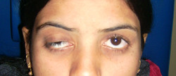 Ptosis Preop