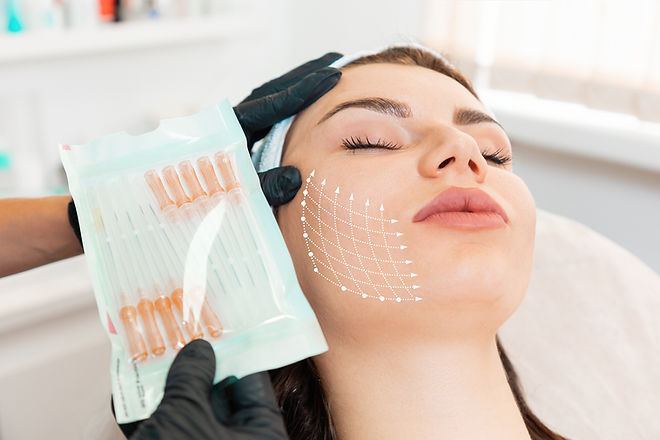 Facial lifting thread. Thread facelift with arrows on face for woman's skin, procedure fac