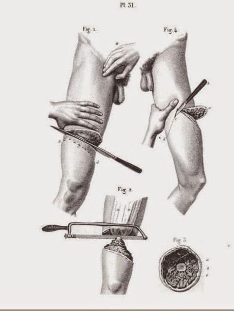 Civil War Amputee Procedures